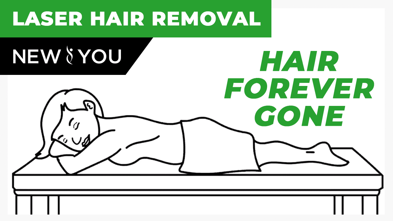 VIDEO: Hair Forever Gone With Laser Hair Removal
