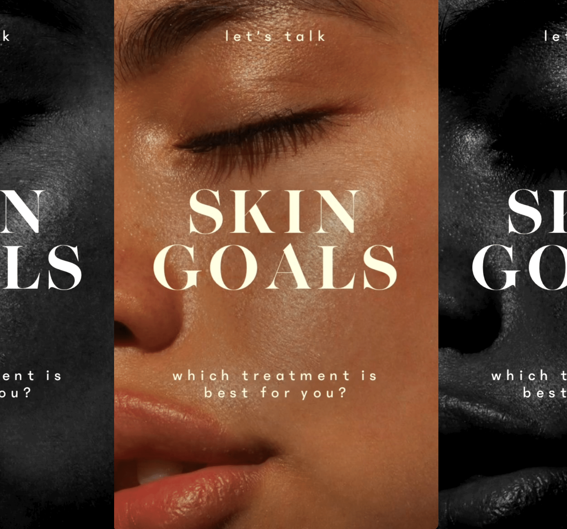 Let's Talk About Skin Goals (Which Treatment Is Best For You?)